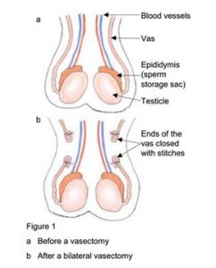 Vasectomy - Parkside Hospital